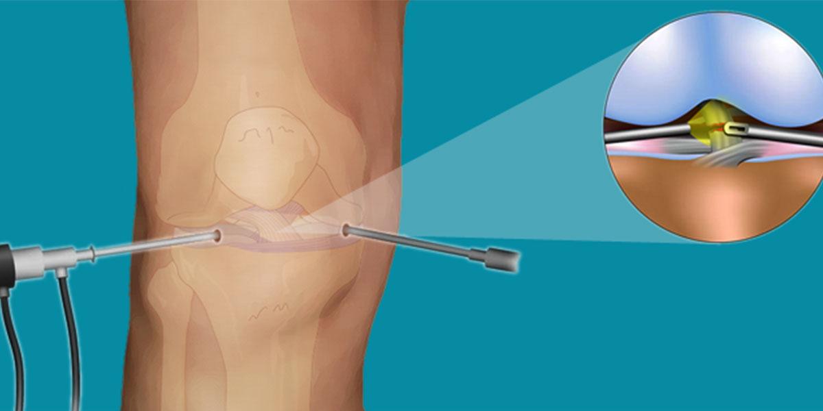 مزایا و معایب جراحی آرتروسکوپی زانو