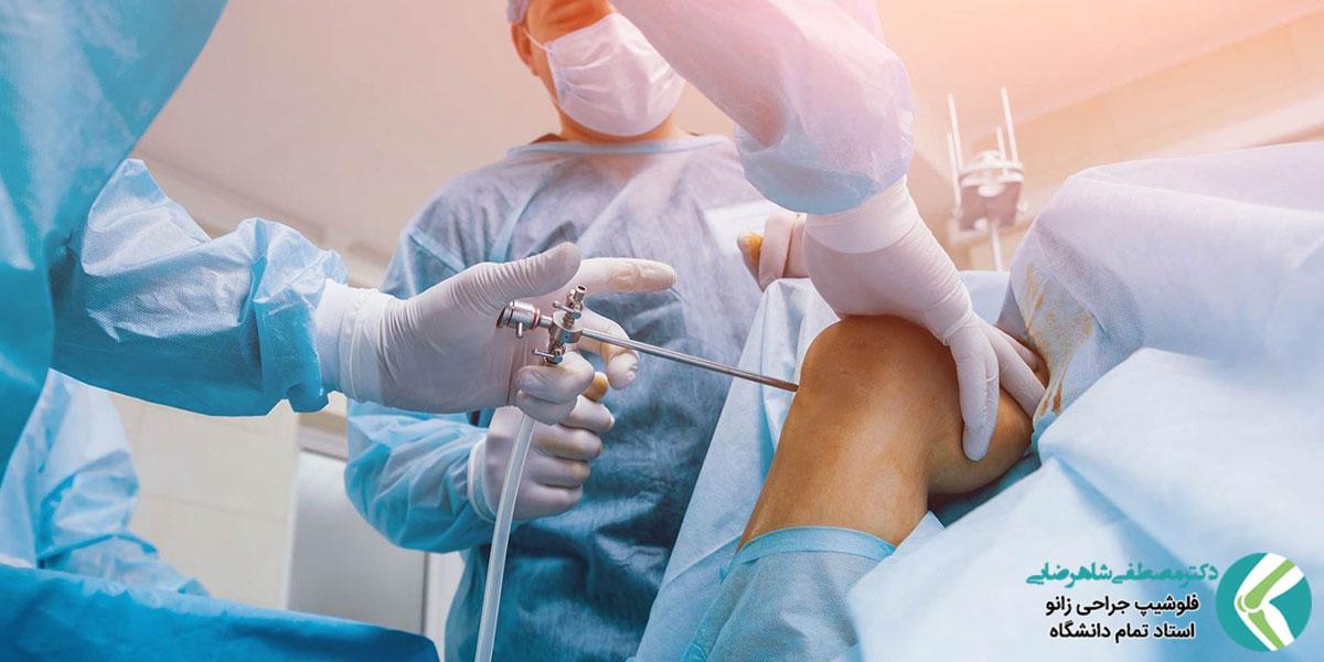 مراقبت بعد از جراحی آرتروسکوپی زانو