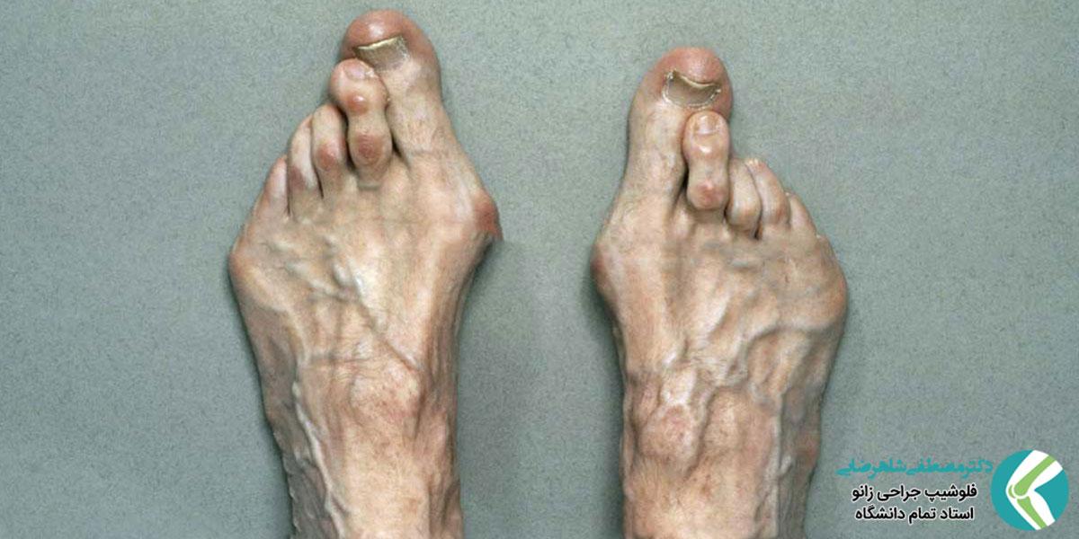 صافی کف پا و راه های درمان آن