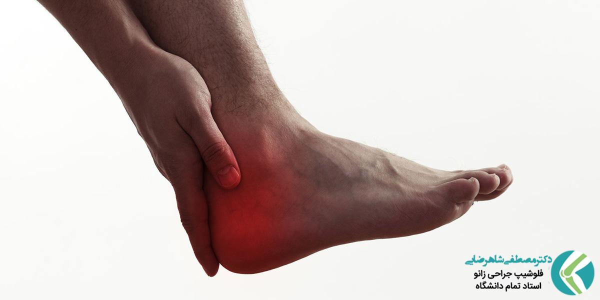 آیا التهاب فاسیای کف پا خطرناک است