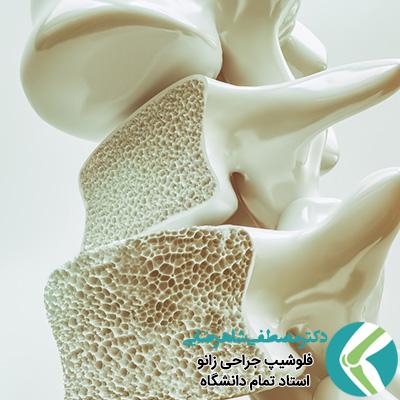 نقش تغذیه در پوکی استخوان