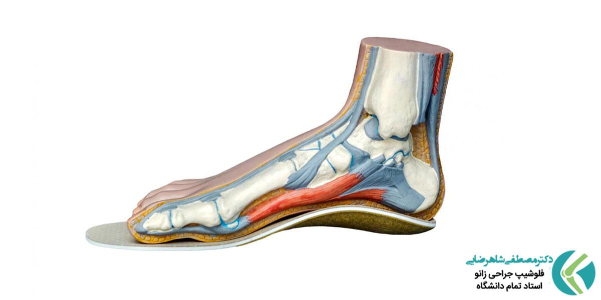 آیا کفش های نامناسب موجب زانو درد می شود؟
