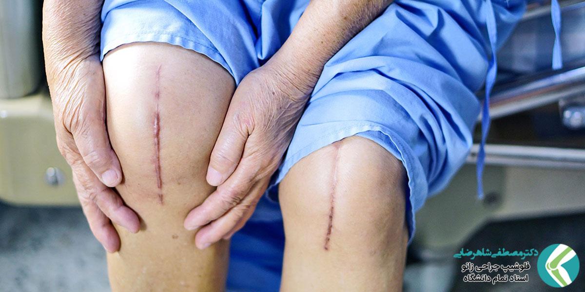 محدودیت حرکت بعد از عمل زانو و علت آن