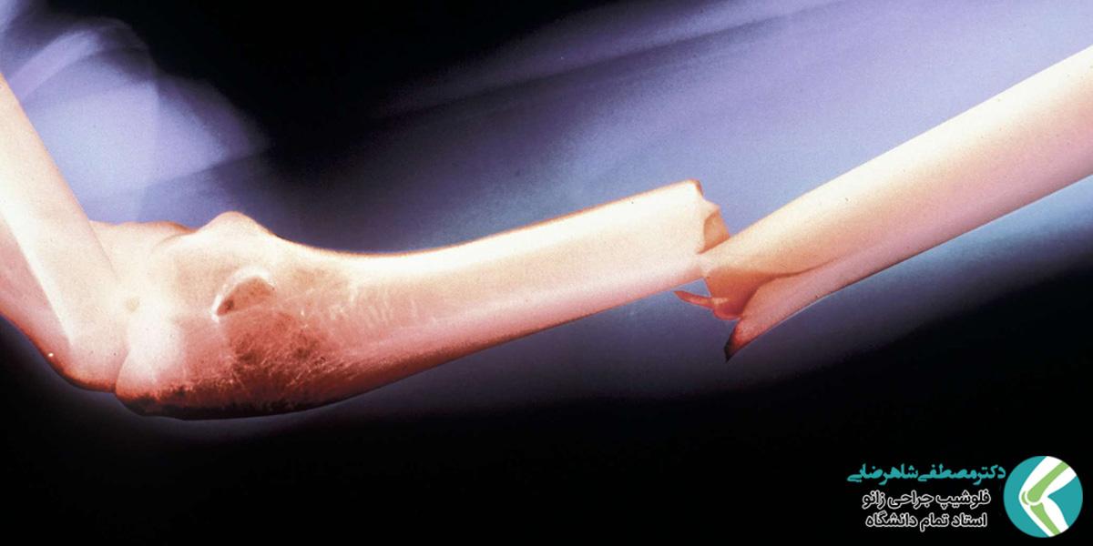 علت شکستگی پاتولوژیک اطراف زانو