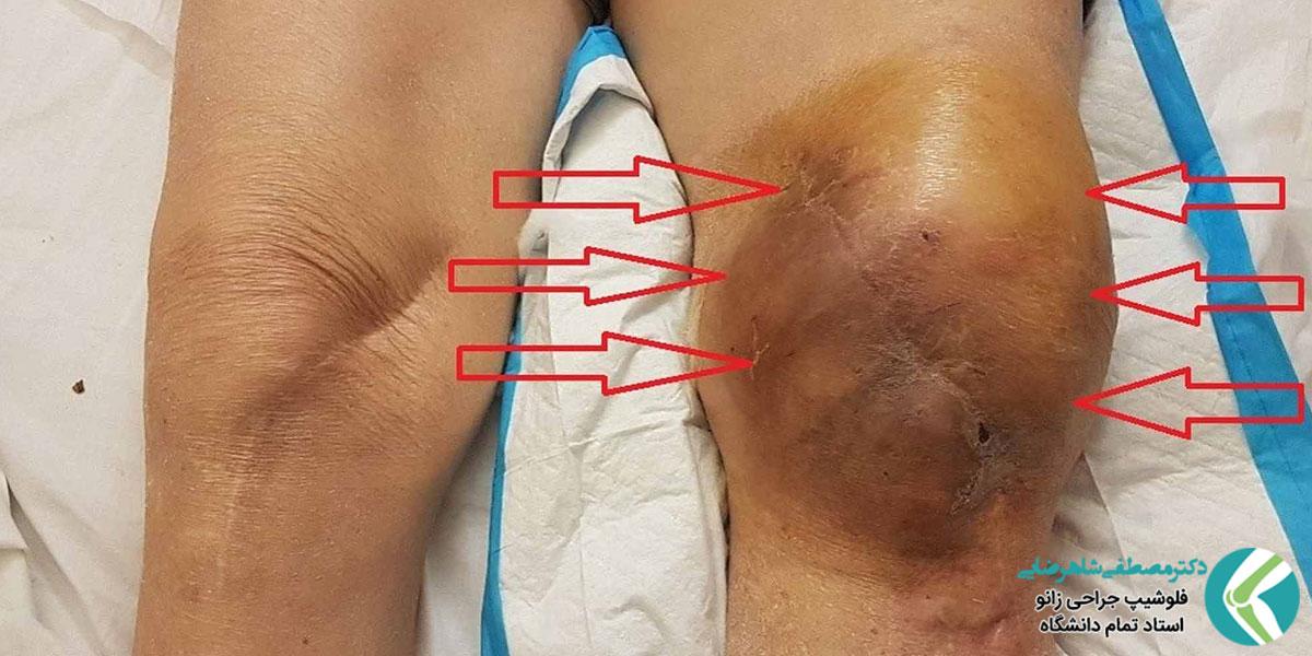خونریزی داخل مفصل زانو (همارتروز زانو)