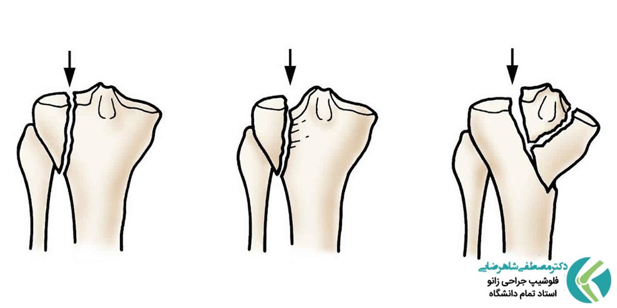 درمان های جراحی و غیر جراحی شکستگی پلاتوی تیبیا