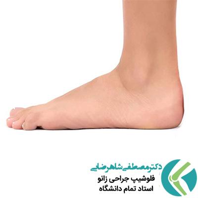 درمان صافی کف پا به روش غیر جراحی