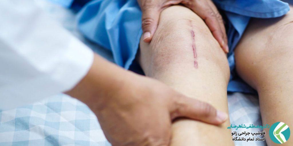 روش های کنترل درد زانو پس از جراحی تعویض مفصل