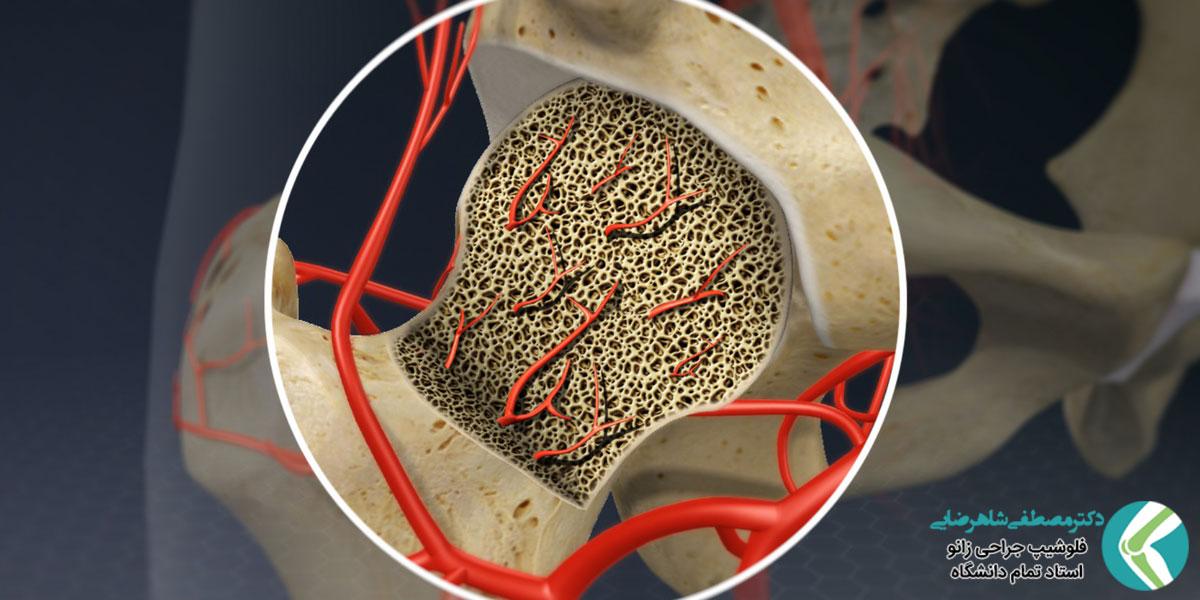 درمان نکروز آواسکولار با جراحی